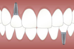 Tips for Dental Implant Recovery